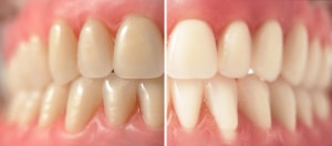 teeth that are stained