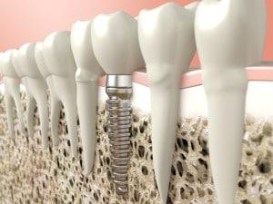 dentalimplantbonetissue