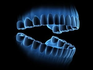 Concept Picture of High Tech Digital Image of Teeth