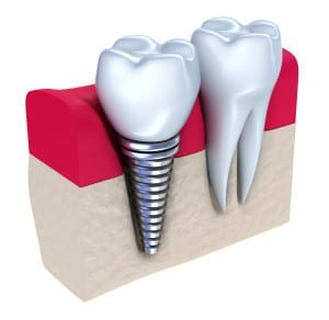 Concept Picture of a Crown Topped Dental Implant