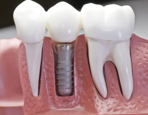 replace lost teeth with dental implants